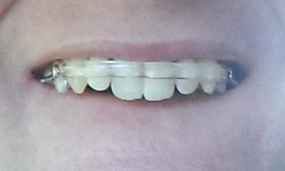 IMAG07041 Inman Aligner Review   3 months to my perfect tennis coach smile! Part 1